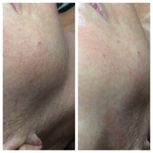 dermaplaning before and after photo