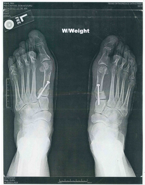 X Ray of Ann Ward's feet (post-surgery w/ nails in feet)