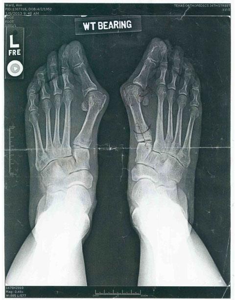 X Ray of Ann Ward's feet (pre-surgery)