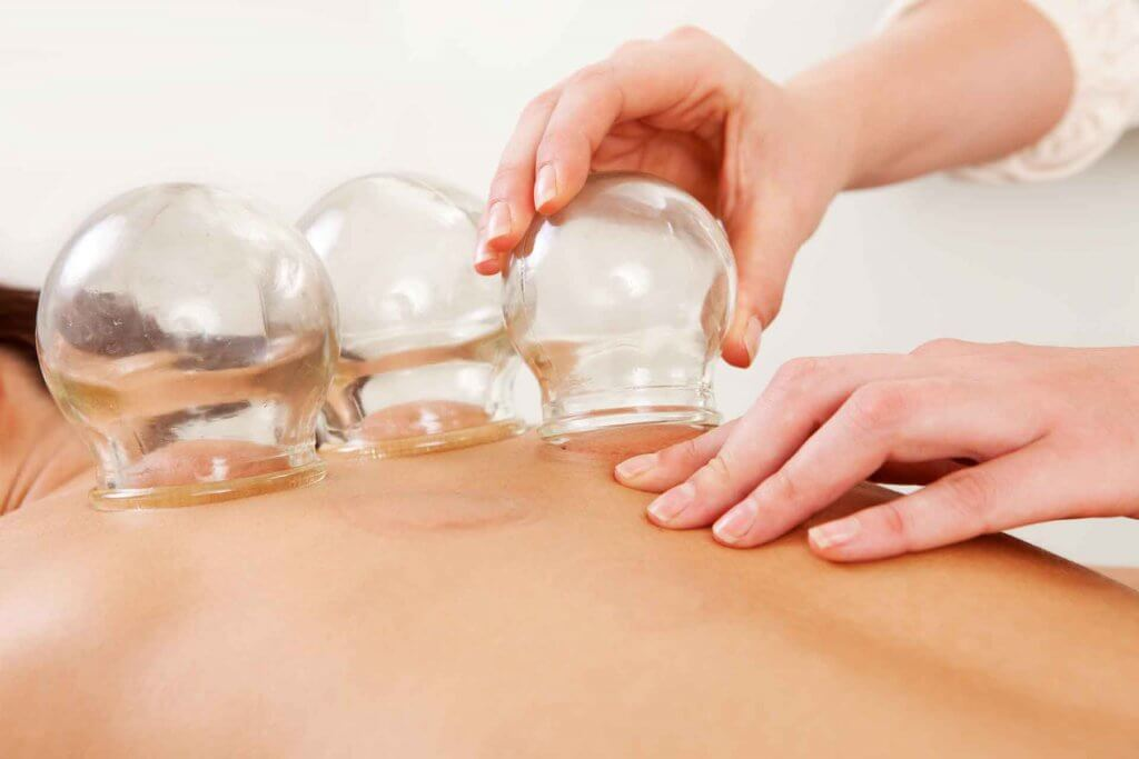 Cupping Treatment in a Spa Setting